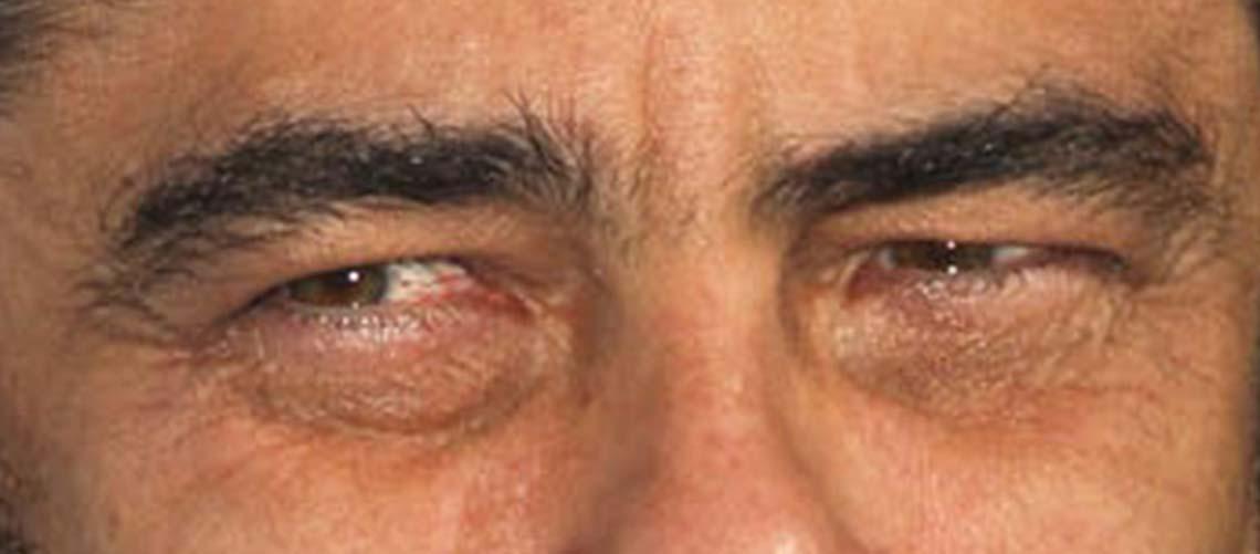 táskás szem