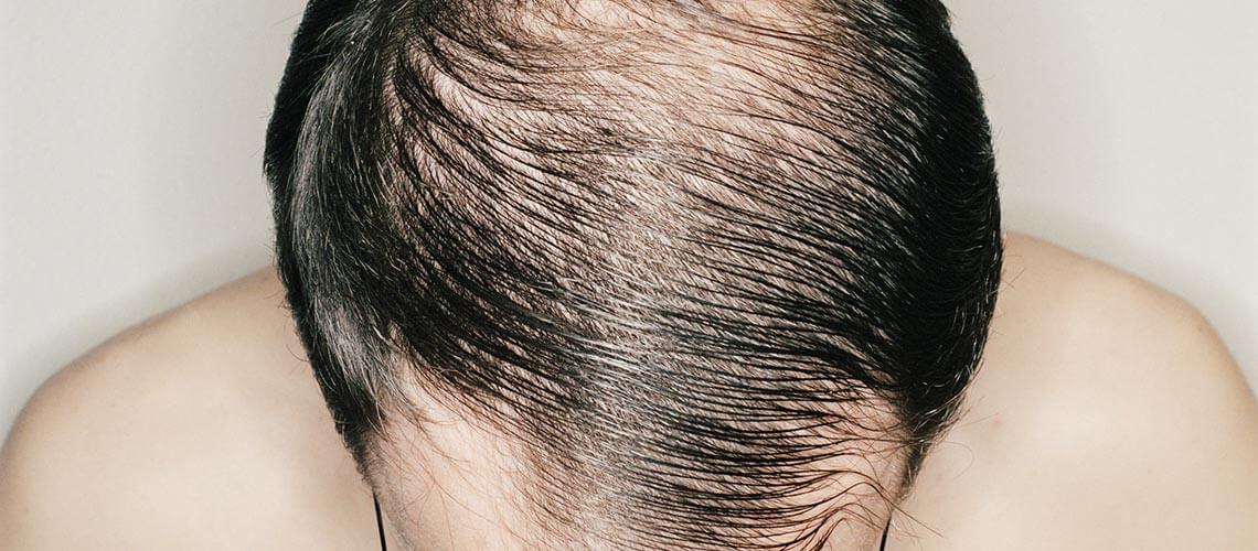 kopaszodás, hajhullás