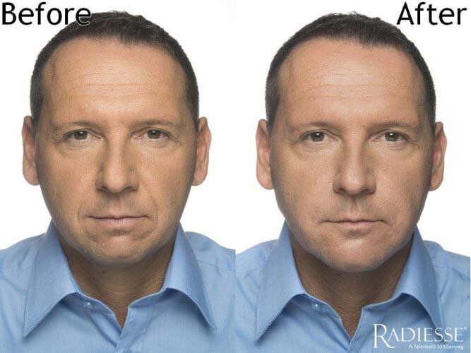 arcfiatalítás - arckezelés