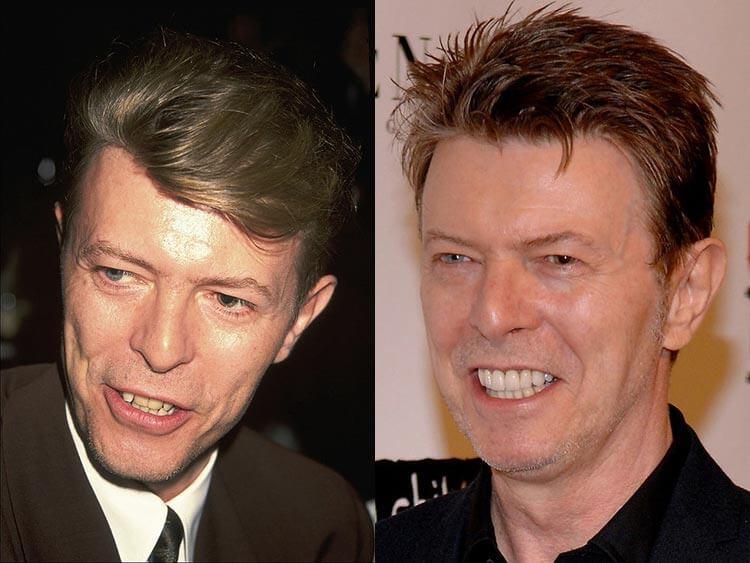 David Bowie - férfi - férfimagazin