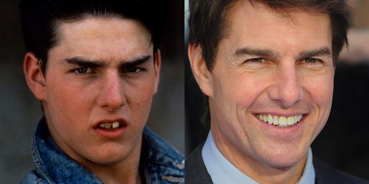Tom Cruise - férfi - online - magazin